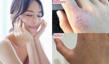 濕疹手晚間急救法 簡單3步不再怕洗到手指爛