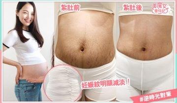 紥肚術大熱 功效超強腰圍勁減10cm!婚前產後都適用 店舖推介(附價錢)