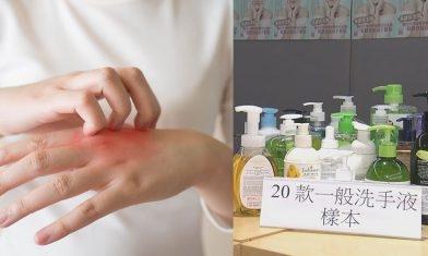 消委會:13大洗手液含致敏防腐劑 嚴重可致皮膚炎 2款更超標近3倍+11款不含防腐劑洗手液