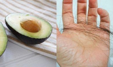 防脫髮8招:食牛油果、不要過度減肥 !改變日常飲食+生活習慣減少甩頭髮 留住烏黑濃髮