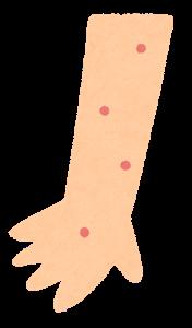 黎瑞恩「生蛇」生上眼部至眉心!帶狀疱疹10級神經痛或致失明 注射預防疫苗勝藥物治療