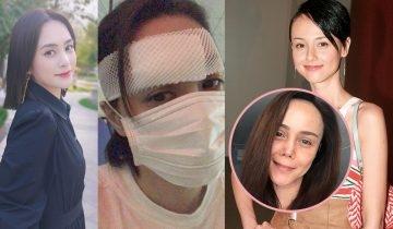 阿嬌酒店發生意外頭部受傷傷口長達6cm!  7大臉部留疤破相的影響:眉毛影響人際關係、眼尾影響夫妻宮