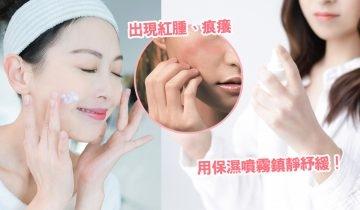 皮膚敏感止痕方法:3招急救處理秘訣+敏感原因!鎮靜面部皮膚敏感紅腫