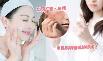 3招皮膚敏感急救處理秘訣+敏感原因!鎮靜面部皮膚敏感紅腫