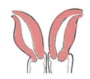 因患上雙子宮畸形,因此有2個子宮及2個陰道。圖片來源:卡多那@Red