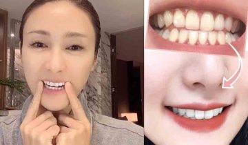 牙齒美白方法! 黎姿3大護牙法+網紅勁推去牙漬用品 ( 牙膏、牙貼)+牙黃注意事項