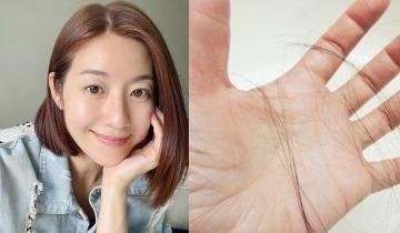 預防脫髮10招:不要喝冷飲、減少生氣!改掉壞習慣+中醫養髮食療 頭髮即重回光澤濃密
