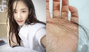 脂溢性脫髮11大症狀:頭油多、痕癢、頭臭 !中醫授防脫髮解決方法